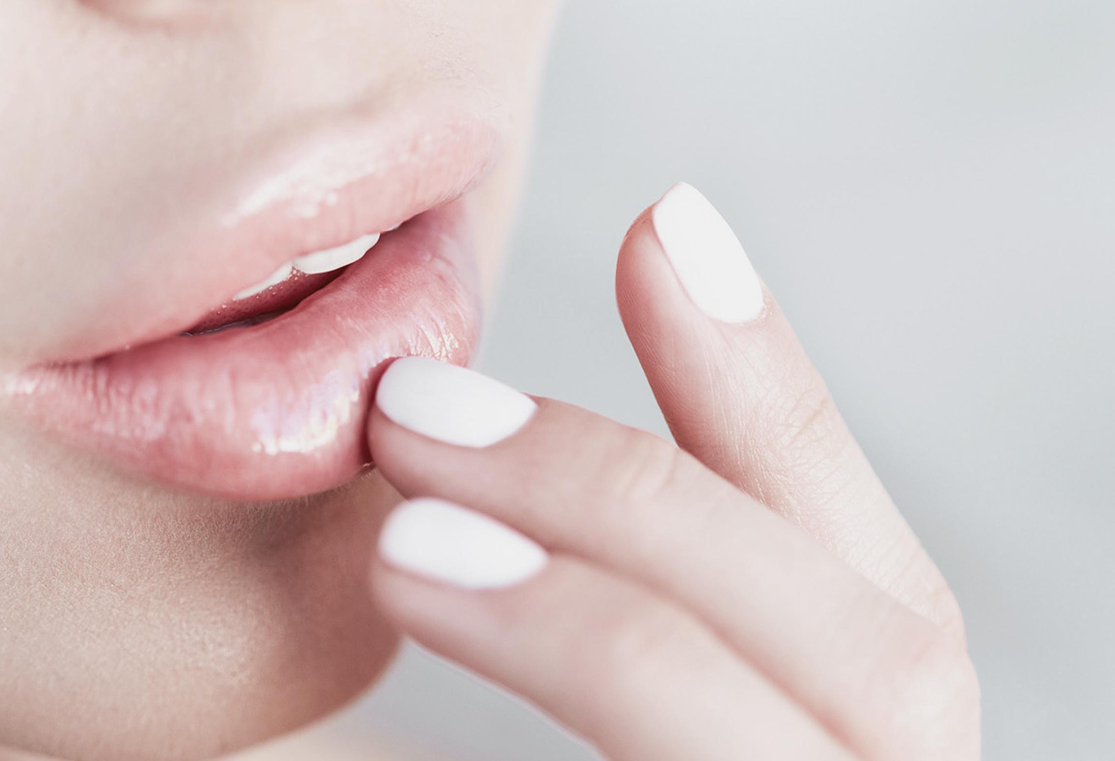acid hialuronic acid buze marire buze, clinica D6 Cluj