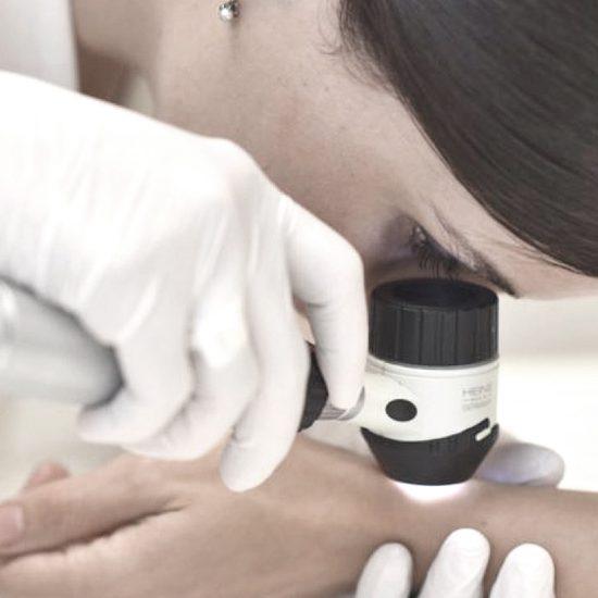 consultatie dermatologica dermatoscopie, clinica D6 Cluj
