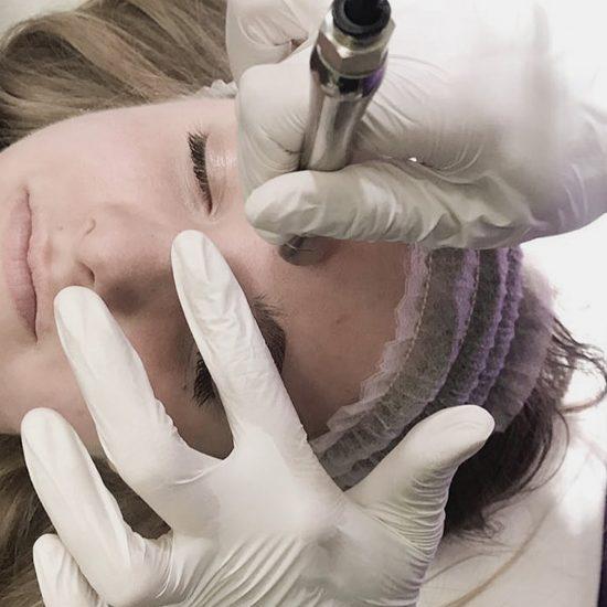 microdermabraziune tratament acnee, clinica D6 Cluj