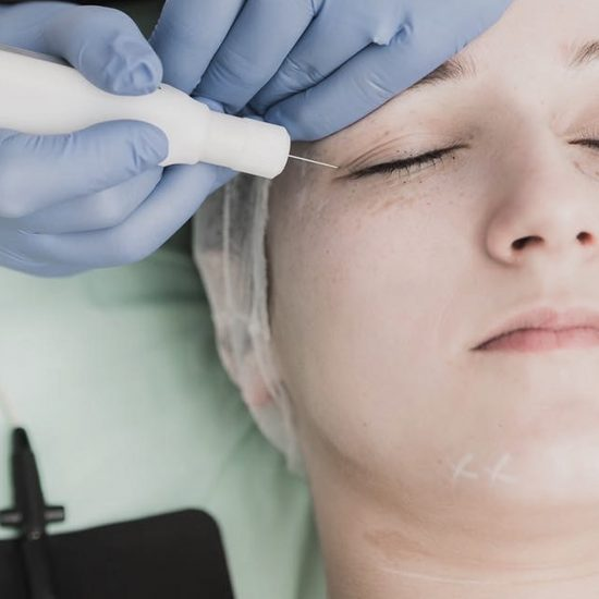 blefaroplastie nechirurgicala lifting facial nechirurgical plexr, clinica D6 Cluj