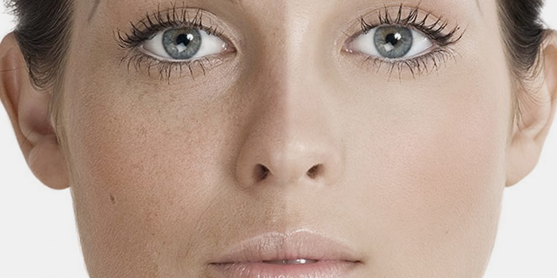 terapie IPL tratament acnee cuperoza lifting facial, clinica D6 Cluj